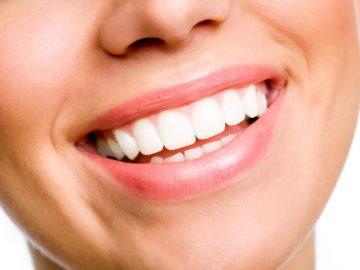 μύδια δόντια